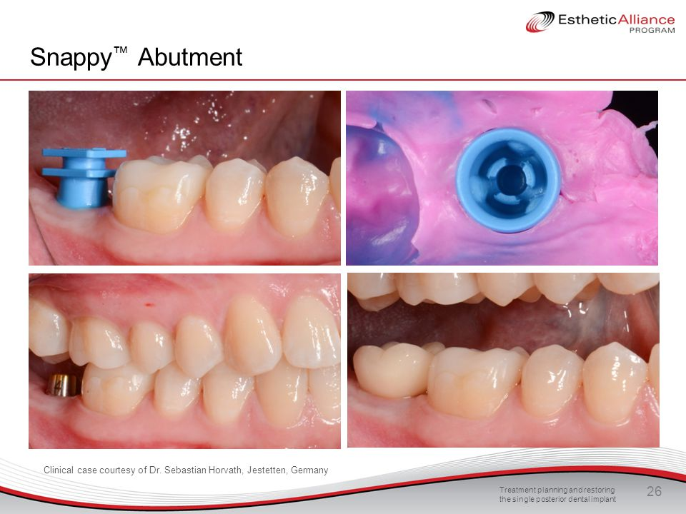 Snappy™ Abutment In this slide, the impression coping is placed on the Snappy abutment, (note the direction of the arrow)