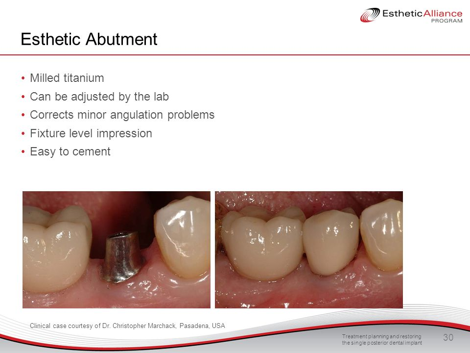 Esthetic Abutment Milled titanium Can be adjusted by the lab