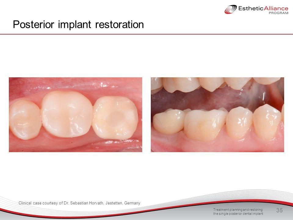 Posterior implant restoration