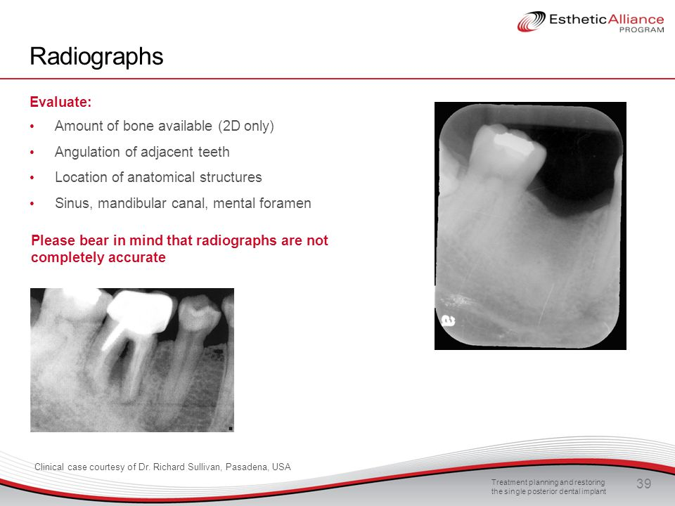 Radiographs Evaluate: Amount of bone available (2D only)