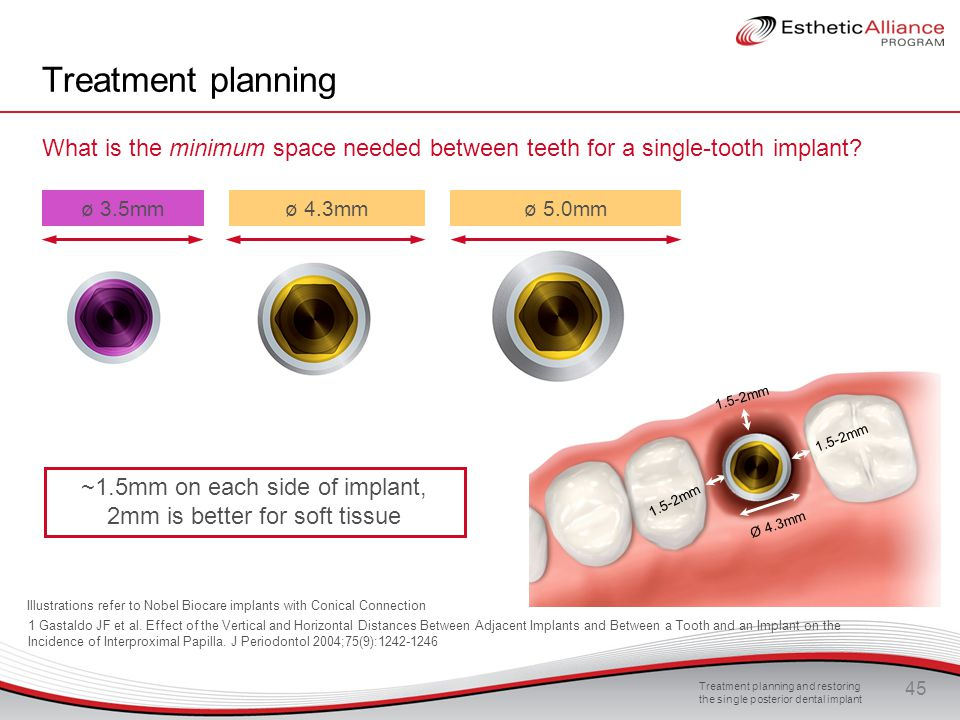 ~1.5mm on each side of implant, 2mm is better for soft tissue