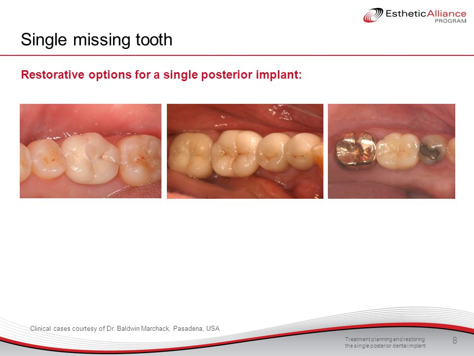 Single missing tooth Restorative options for a single posterior implant: We discussed treatment planning, case presentations and informed consent.