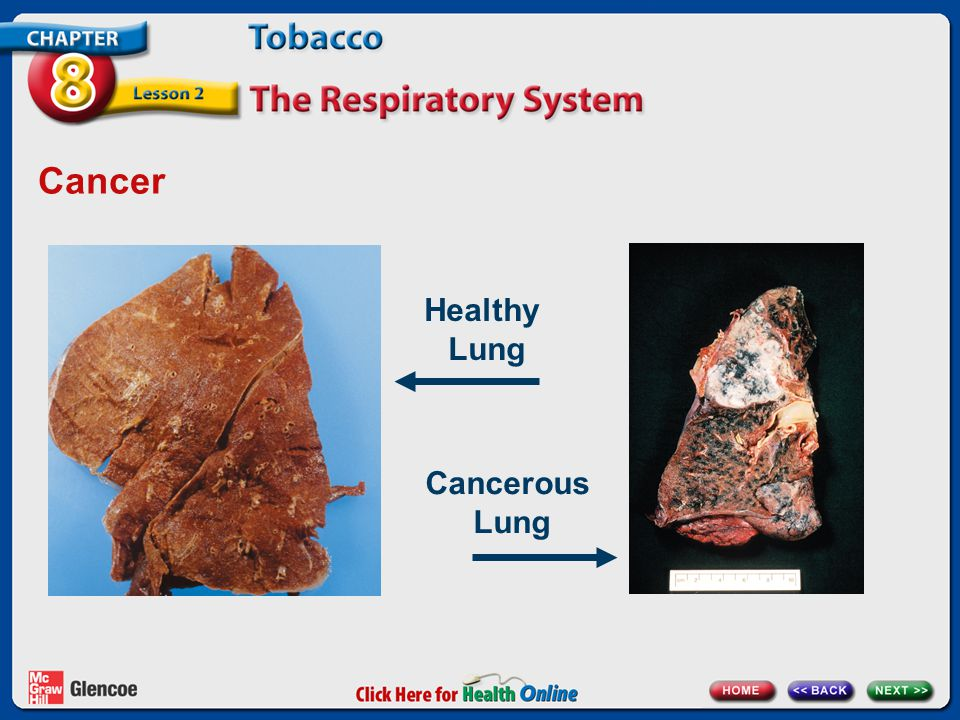 Cancer Healthy Lung Click to add notes Cancerous Lung