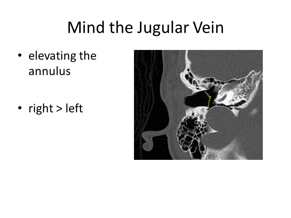 Mind the Jugular Vein elevating the annulus right > left