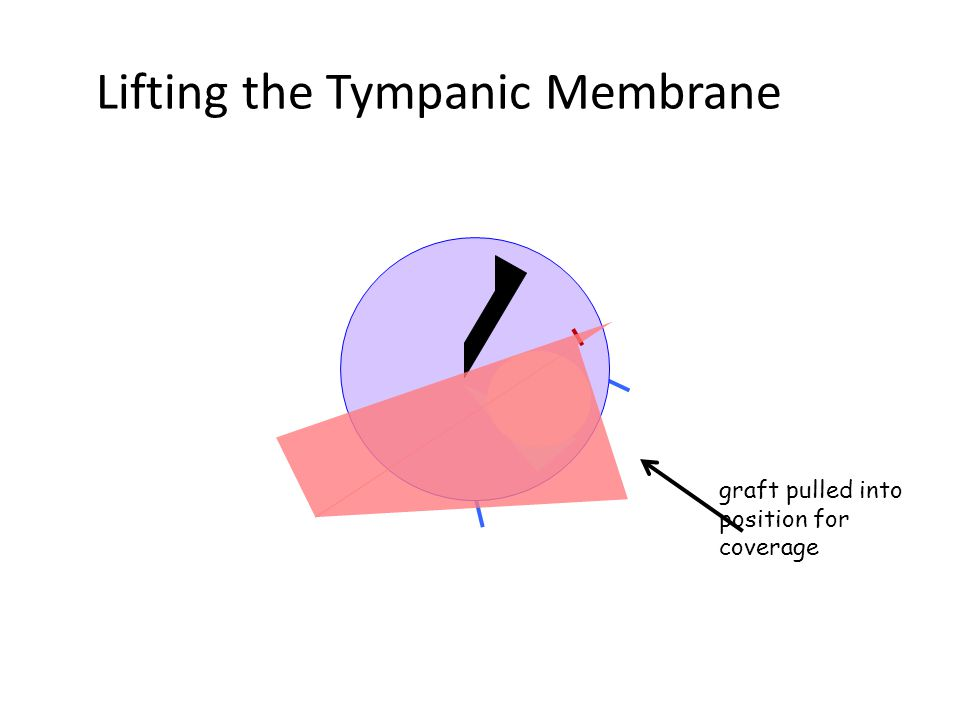 Lifting the Tympanic Membrane