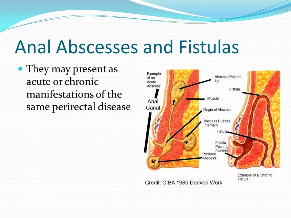 Anal Abscesses and Fistulas
