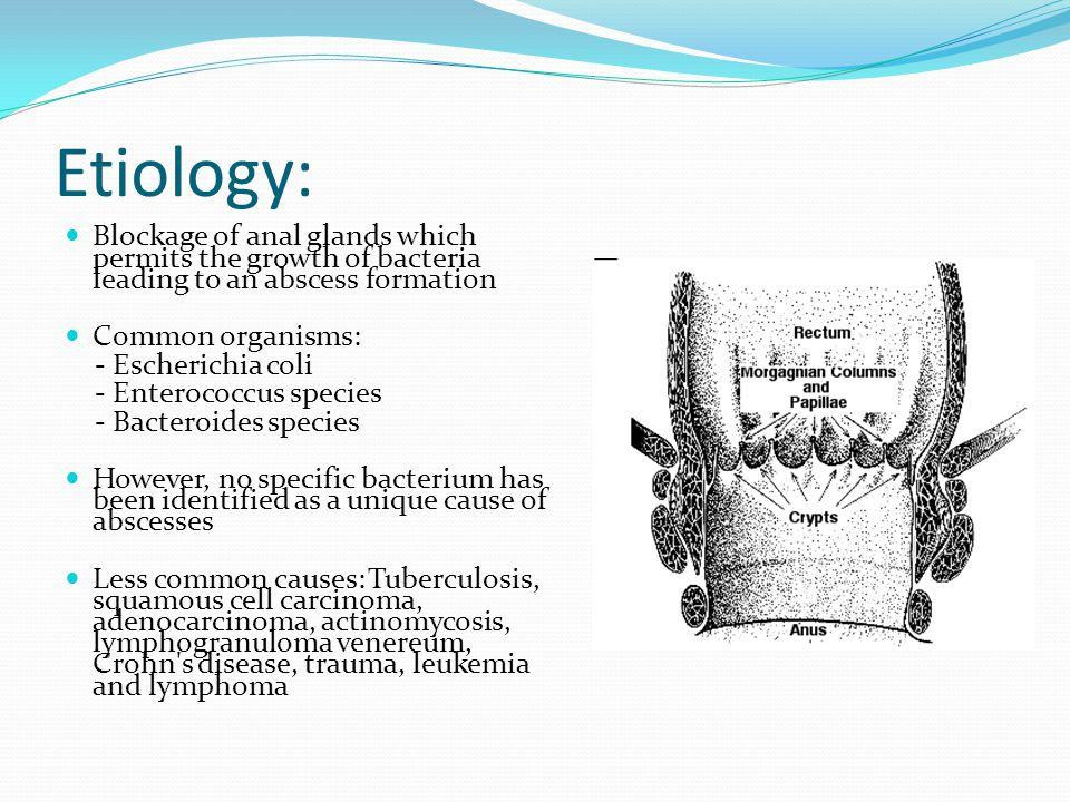Etiology: Blockage of anal glands which permits the growth of bacteria leading to an abscess formation.