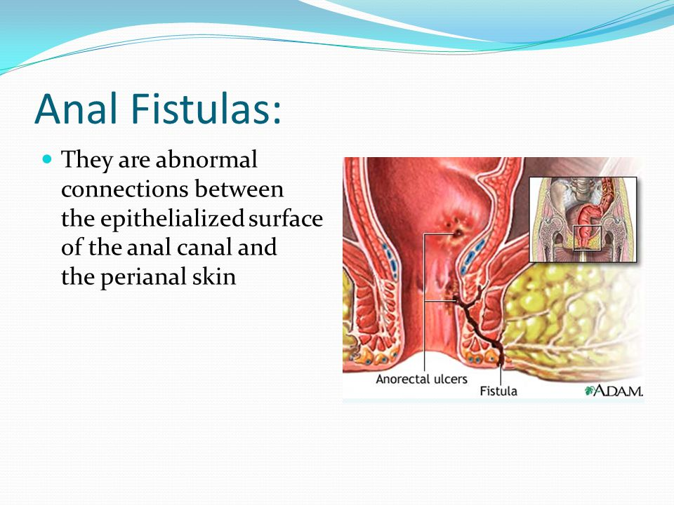 Anal Fistulas: They are abnormal connections between the epithelialized surface of the anal canal and the perianal skin.