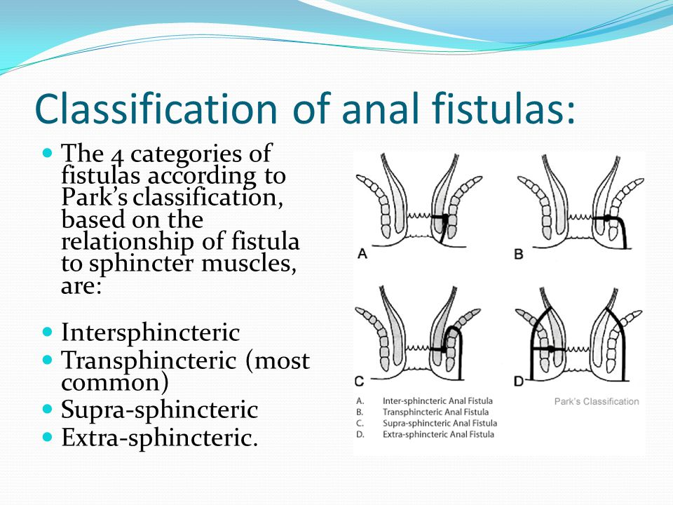 Classification of anal fistulas:
