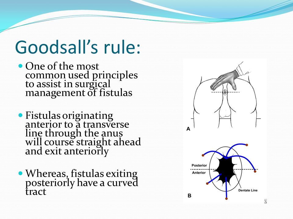 Goodsall's rule: One of the most common used principles to assist in surgical management of fistulas.
