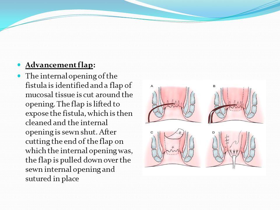 Advancement flap: