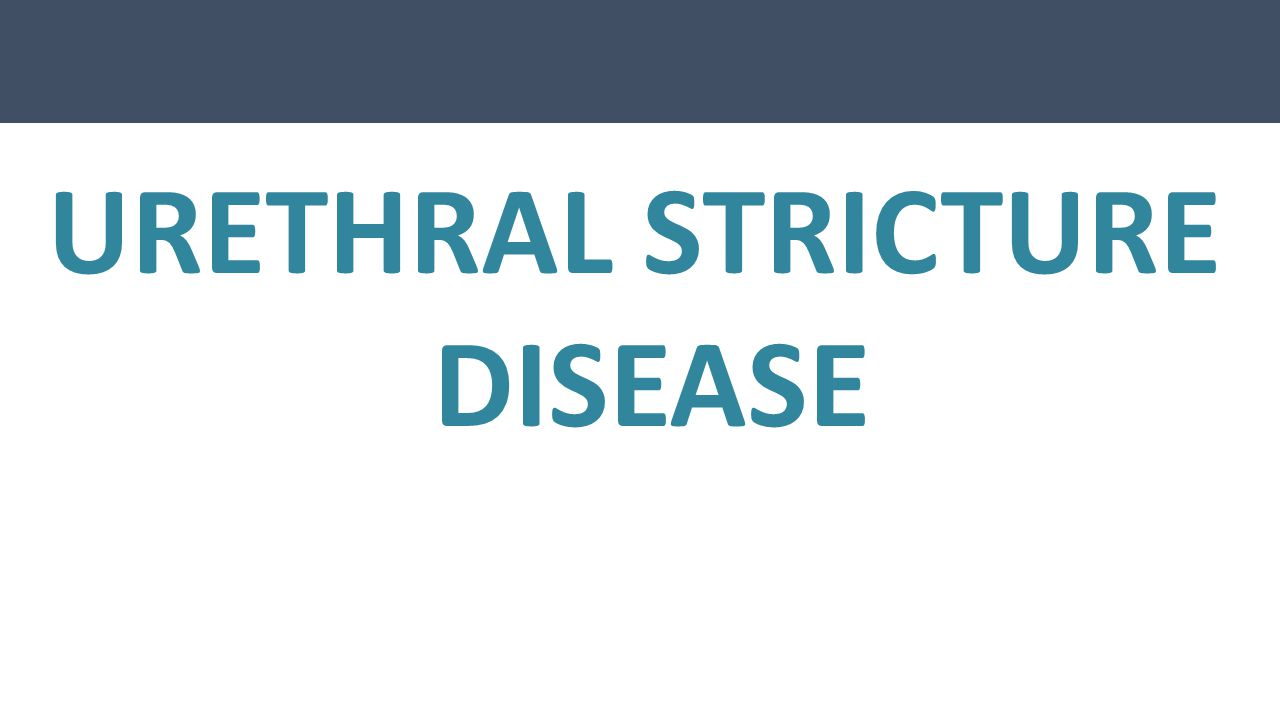 URETHRAL STRICTURE DISEASE