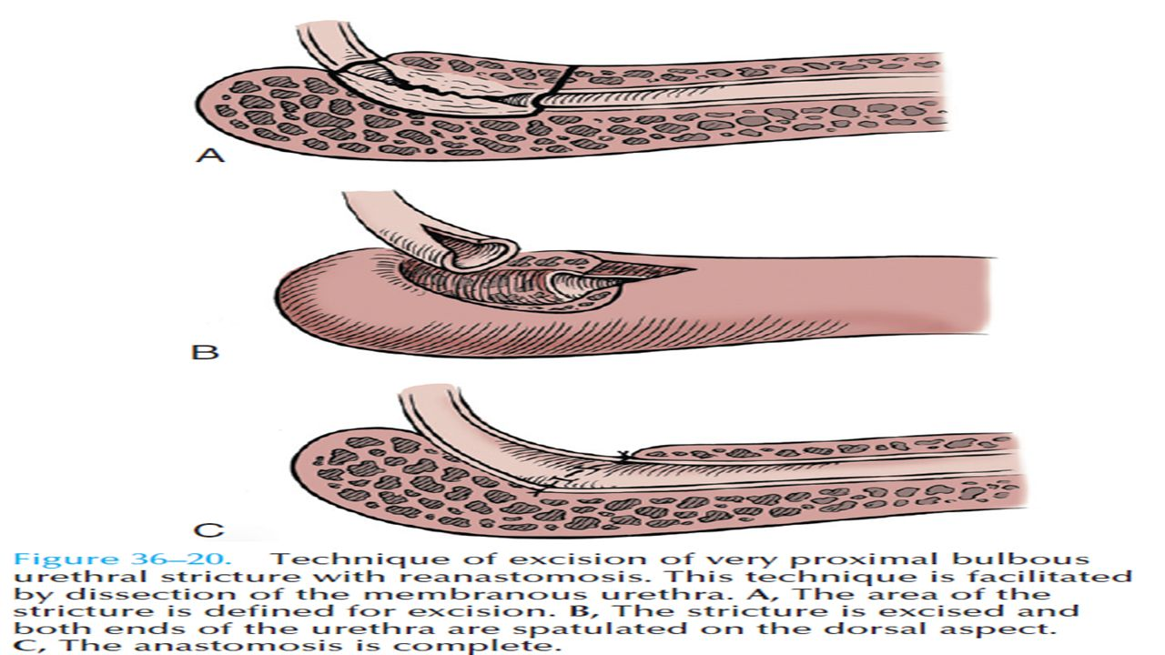 Excision and Reanastomosis