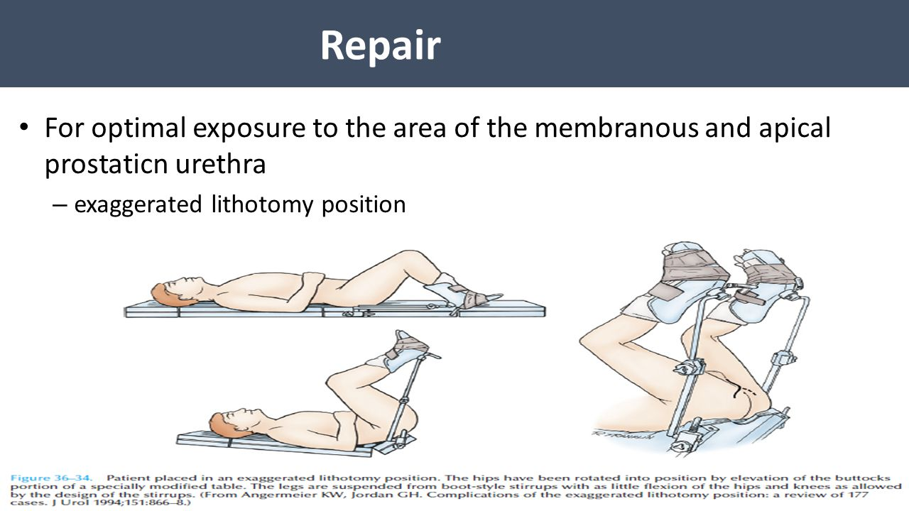 Repair For optimal exposure to the area of the membranous and apical prostaticn urethra.
