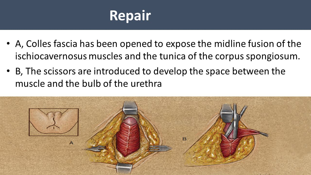 Repair A, Colles fascia has been opened to expose the midline fusion of the ischiocavernosus muscles and the tunica of the corpus spongiosum.