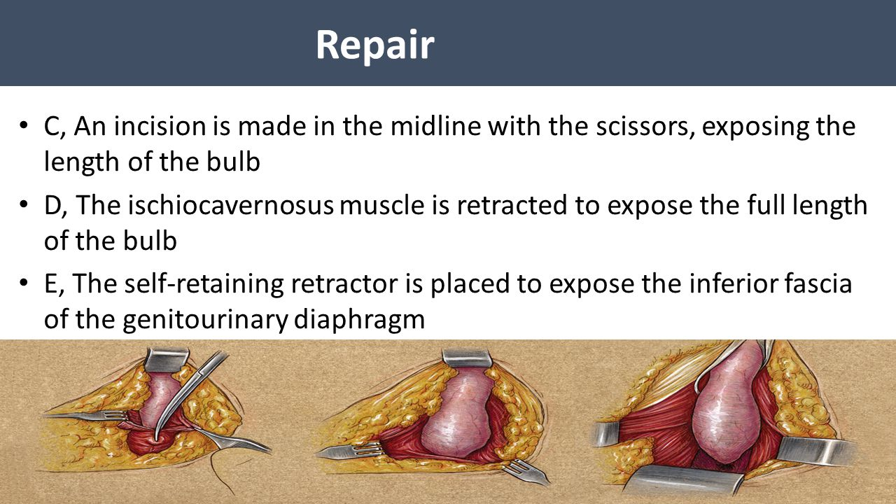 Repair C, An incision is made in the midline with the scissors, exposing the length of the bulb.