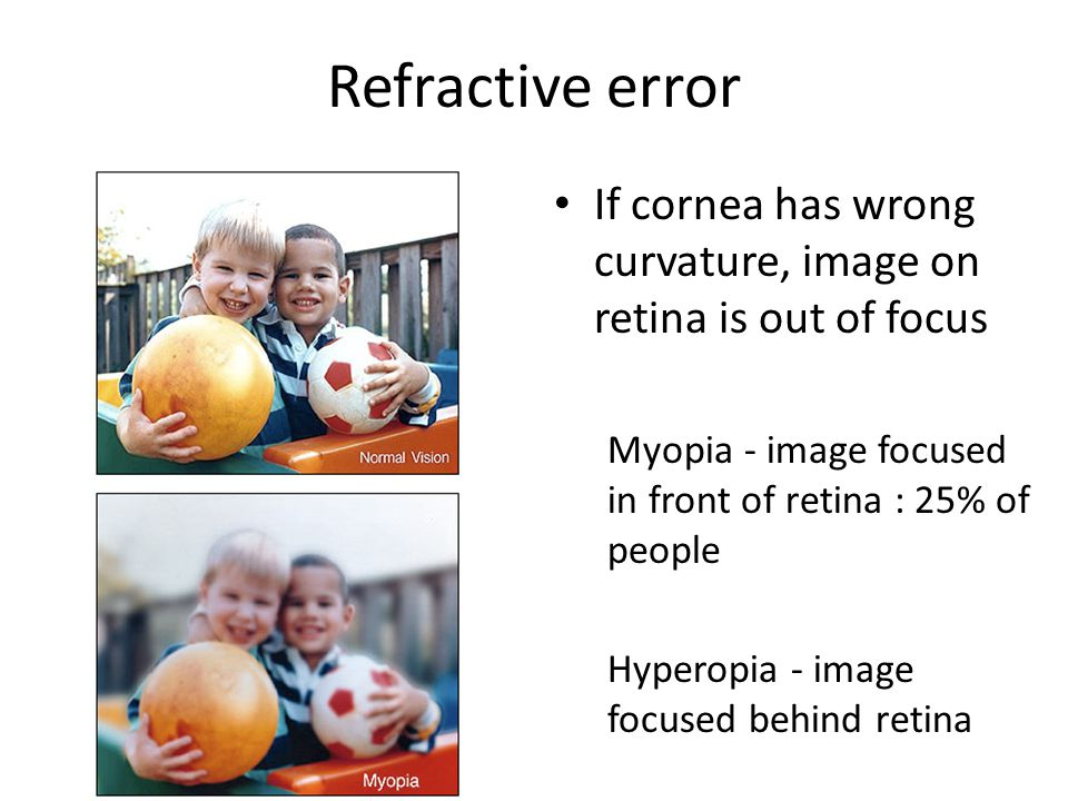 Refractive error If cornea has wrong curvature, image on retina is out of focus. Myopia - image focused in front of retina : 25% of people.