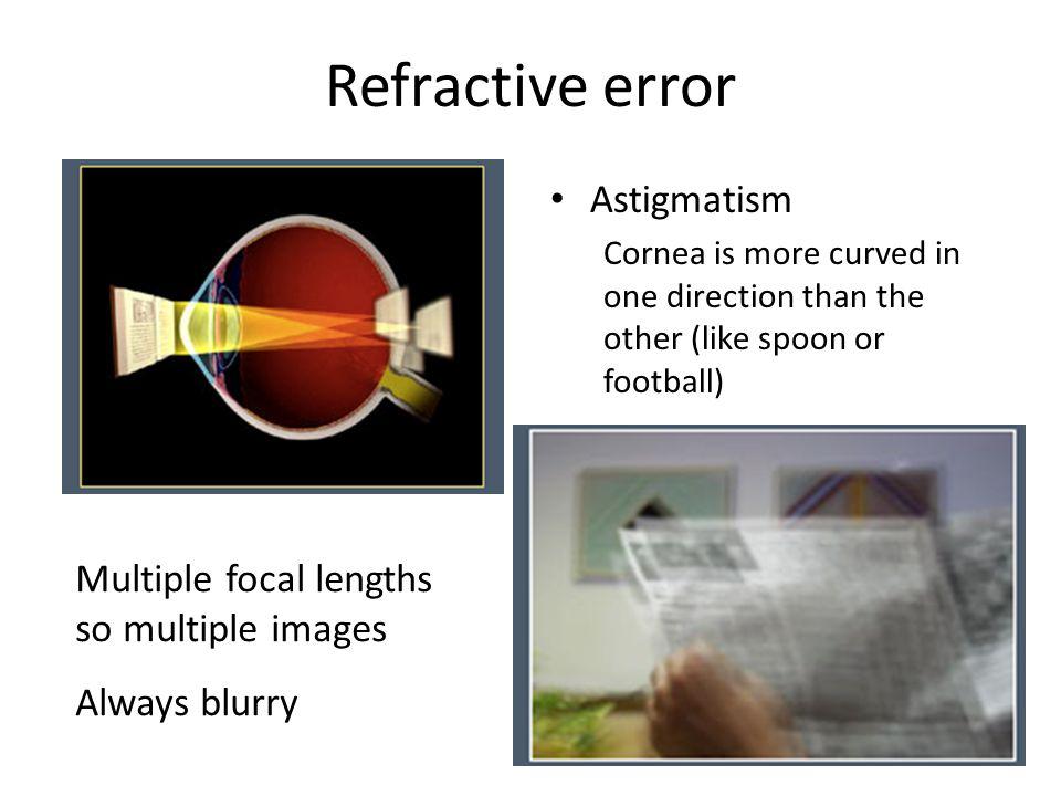 Refractive error Astigmatism Multiple focal lengths so multiple images