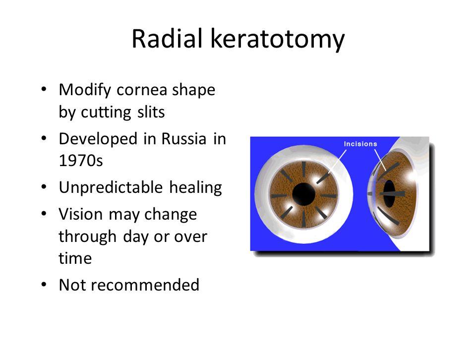 Radial keratotomy Modify cornea shape by cutting slits