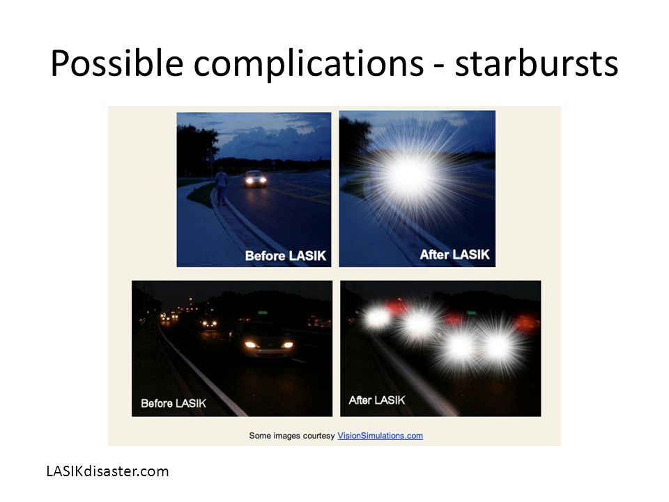 Possible complications - starbursts