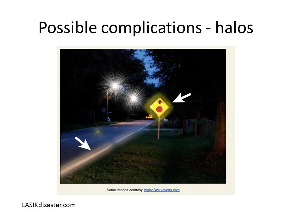 Possible complications - halos