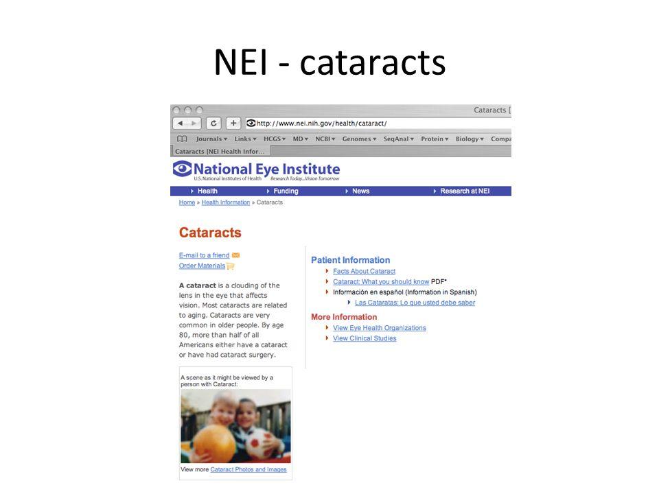 NEI - cataracts