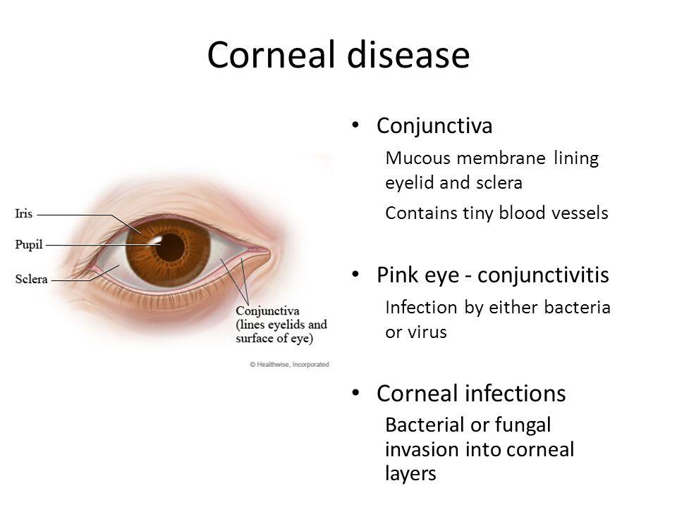 Corneal disease Corneal infections Conjunctiva