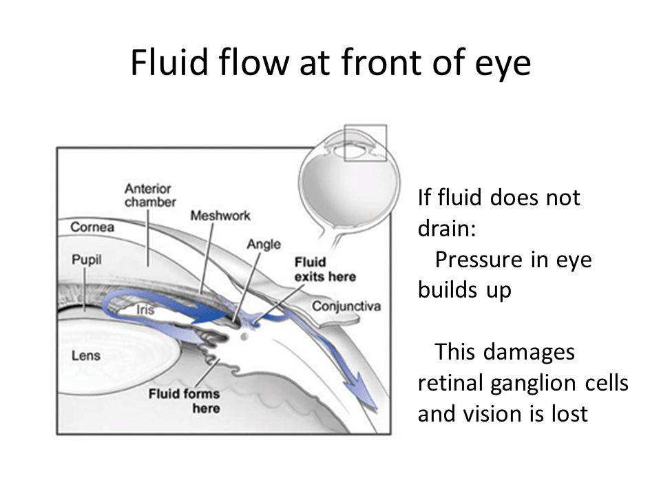 Fluid flow at front of eye