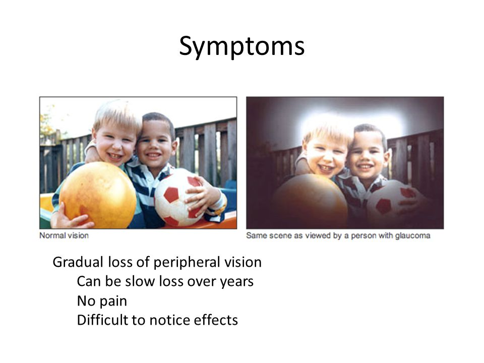 Symptoms Gradual loss of peripheral vision Can be slow loss over years