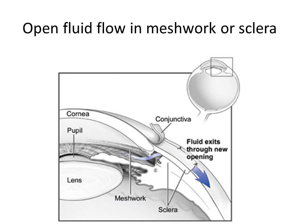Open fluid flow in meshwork or sclera