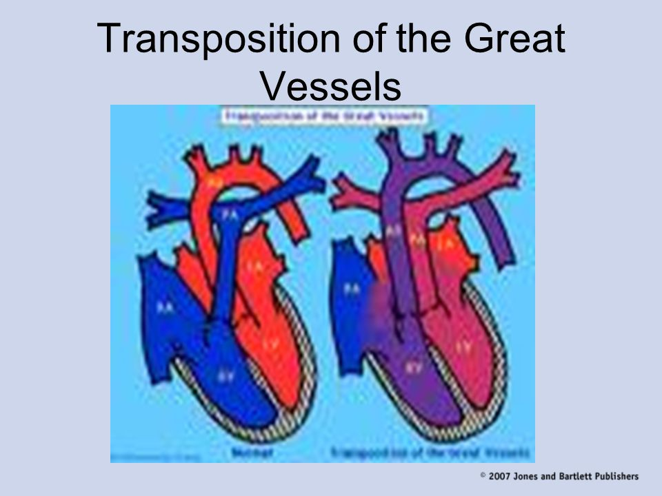 Transposition of the Great Vessels