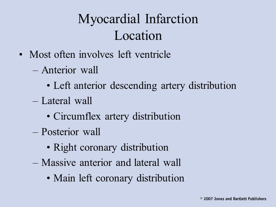 Myocardial Infarction Location