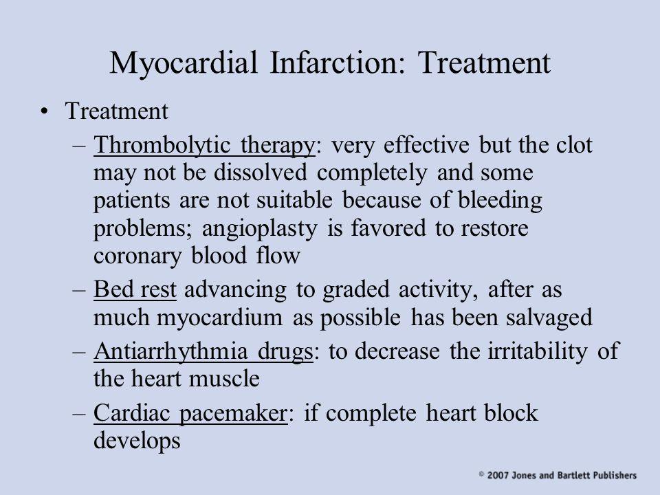 Myocardial Infarction: Treatment