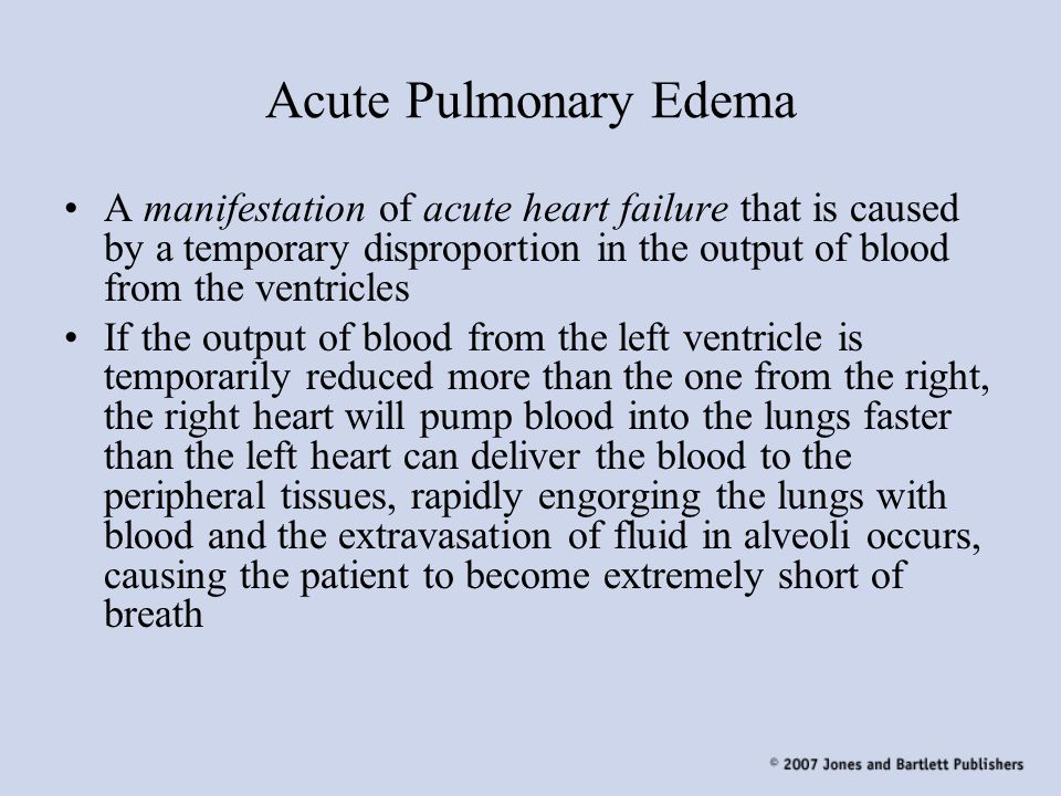 Acute Pulmonary Edema A manifestation of acute heart failure that is caused by a temporary disproportion in the output of blood from the ventricles.