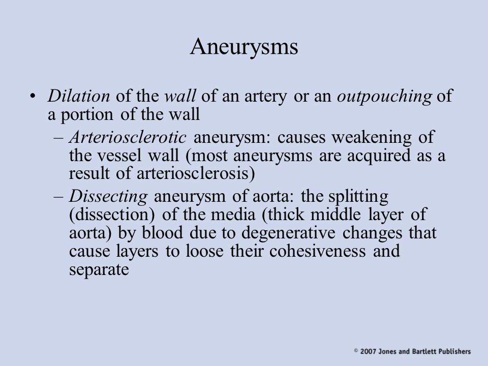 Aneurysms Dilation of the wall of an artery or an outpouching of a portion of the wall.