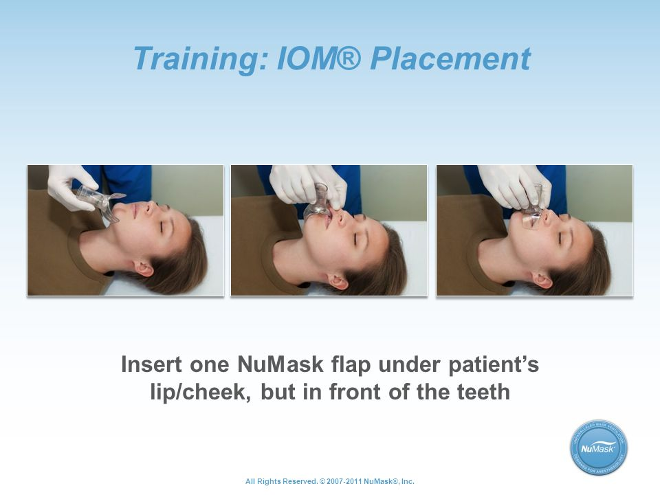 Training: IOM® Placement