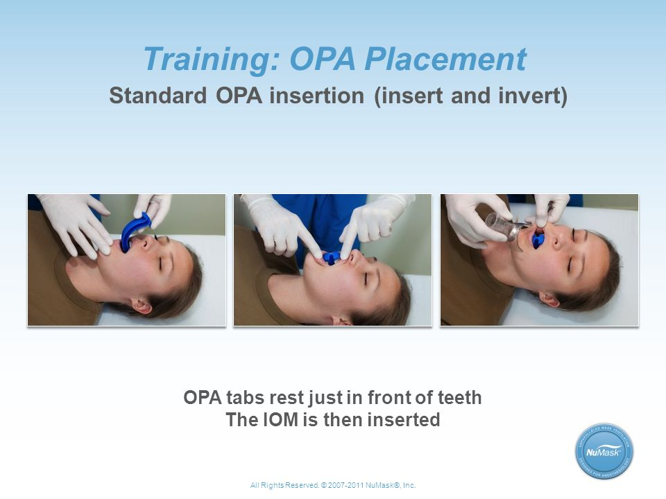 Training: OPA Placement