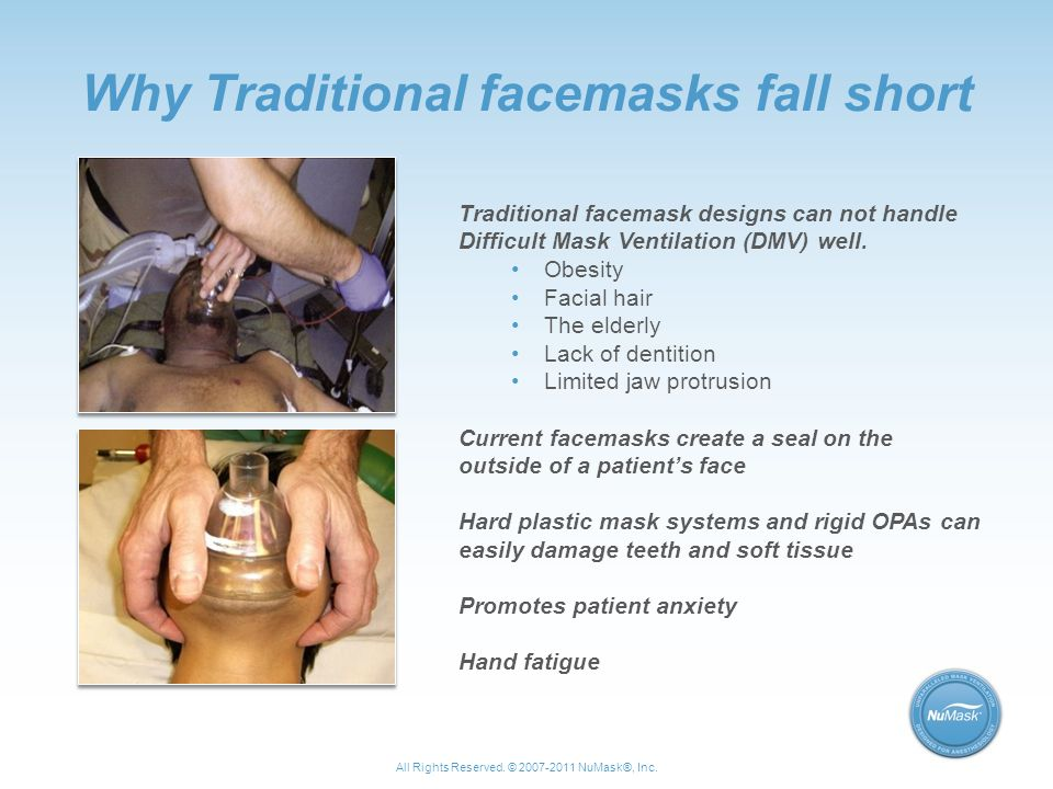 Why Traditional facemasks fall short