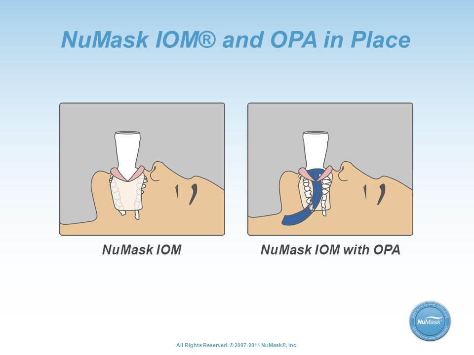 NuMask IOM® and OPA in Place