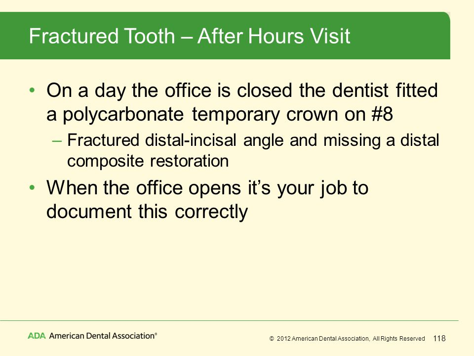 Fractured Tooth – After Hours Visit