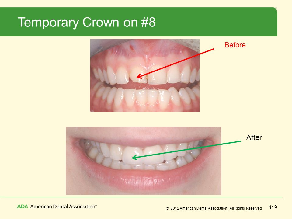 Temporary Crown on #8 Before After No Notes
