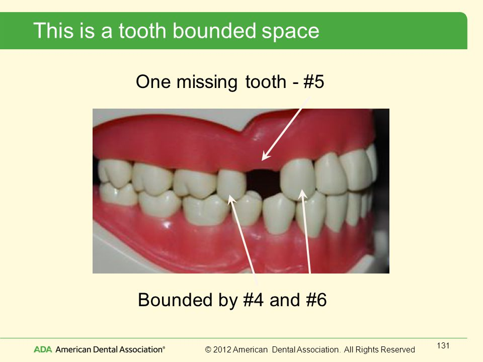 This is a tooth bounded space