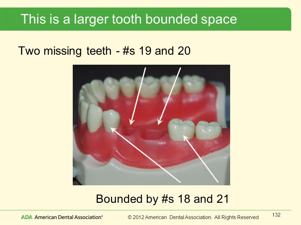 This is a larger tooth bounded space