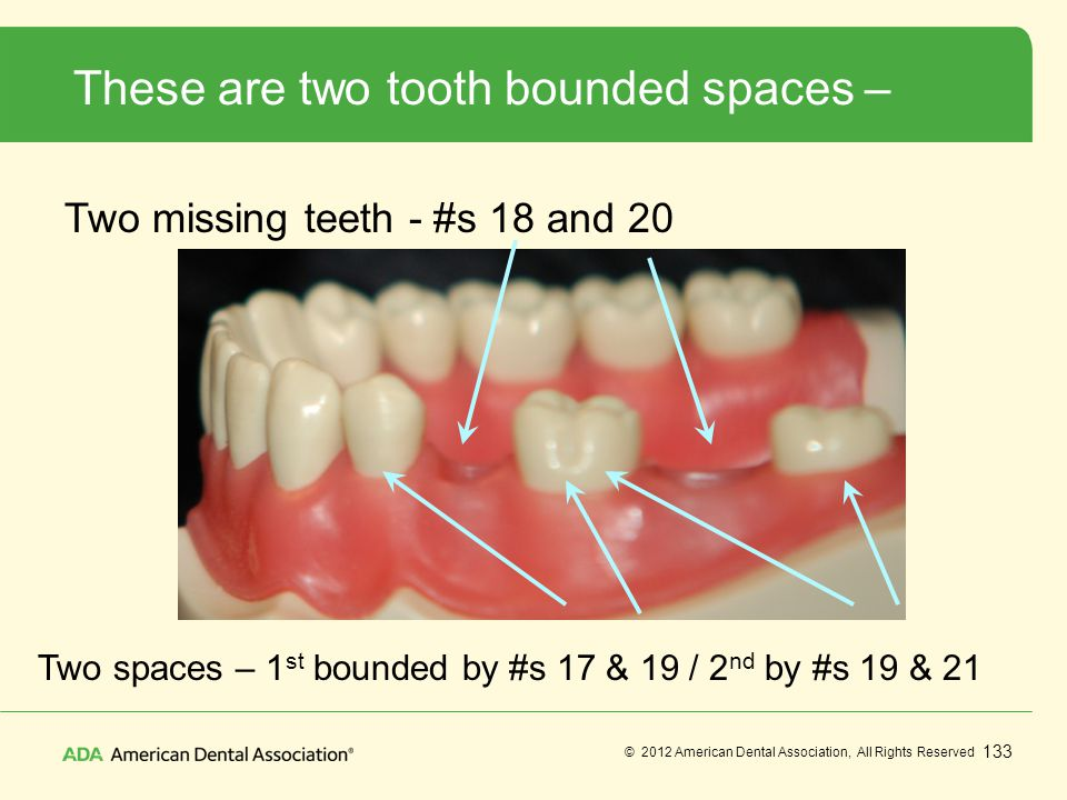 These are two tooth bounded spaces –