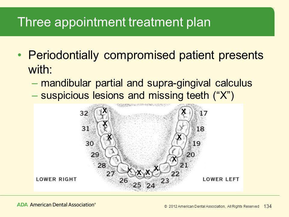 Three appointment treatment plan