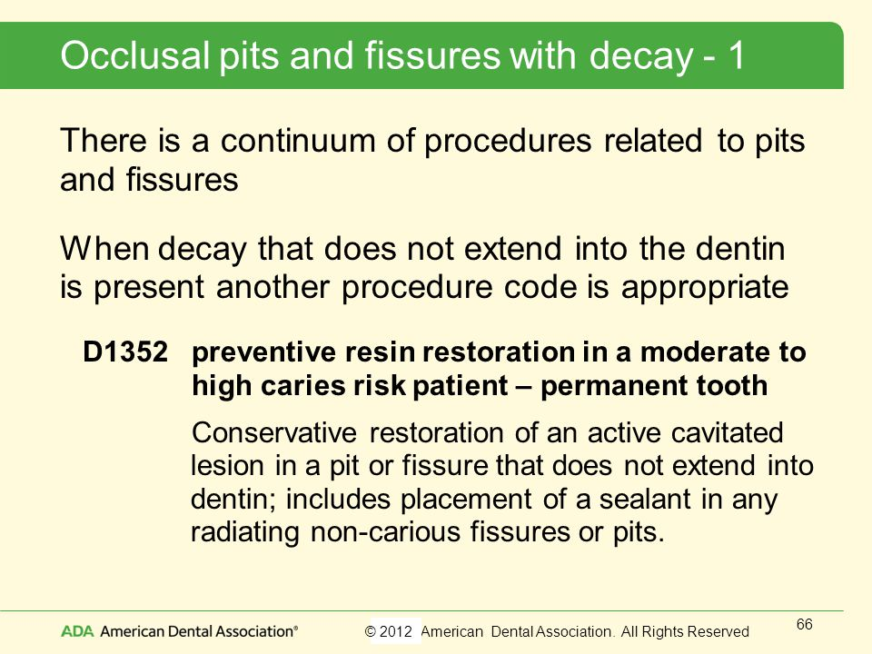 Occlusal pits and fissures with decay - 1