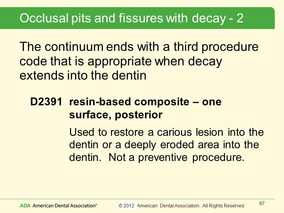 Occlusal pits and fissures with decay - 2