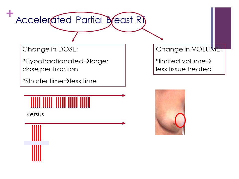 Accelerated Partial Breast RT