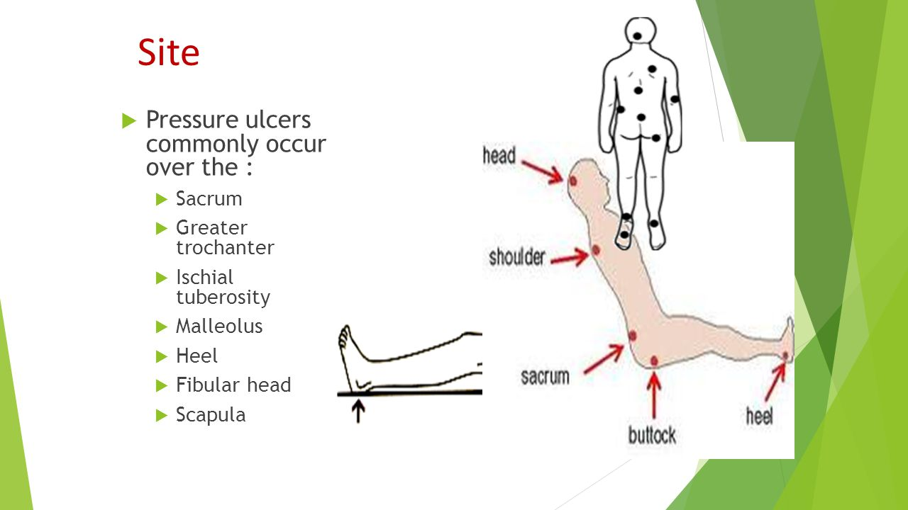 Site Pressure ulcers commonly occur over the : Sacrum