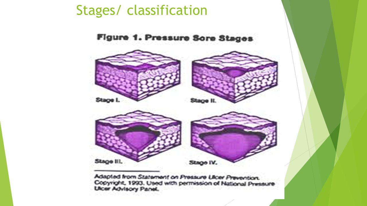 Stages/ classification